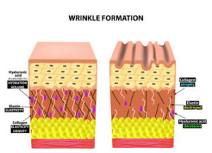 How Wrinkles Form